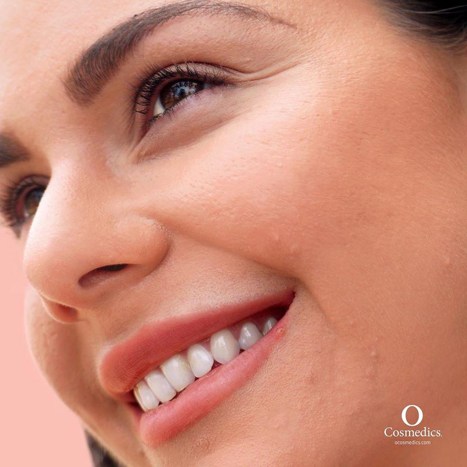 O Cosmedics Skin Breakouts
